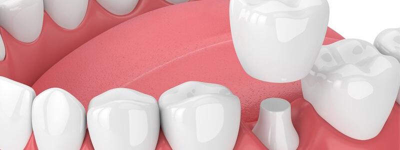 Porcelanowa korona zęba